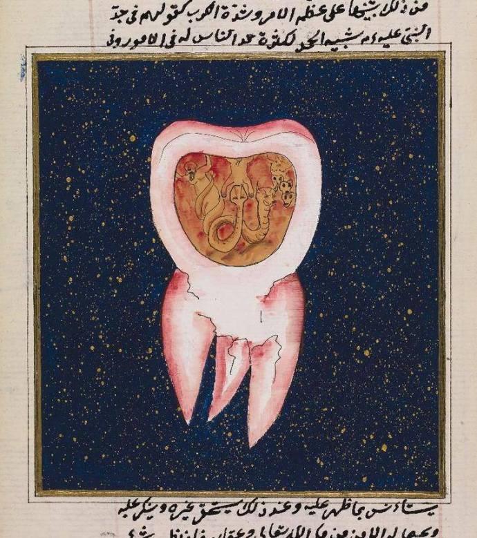 Verme dentale
