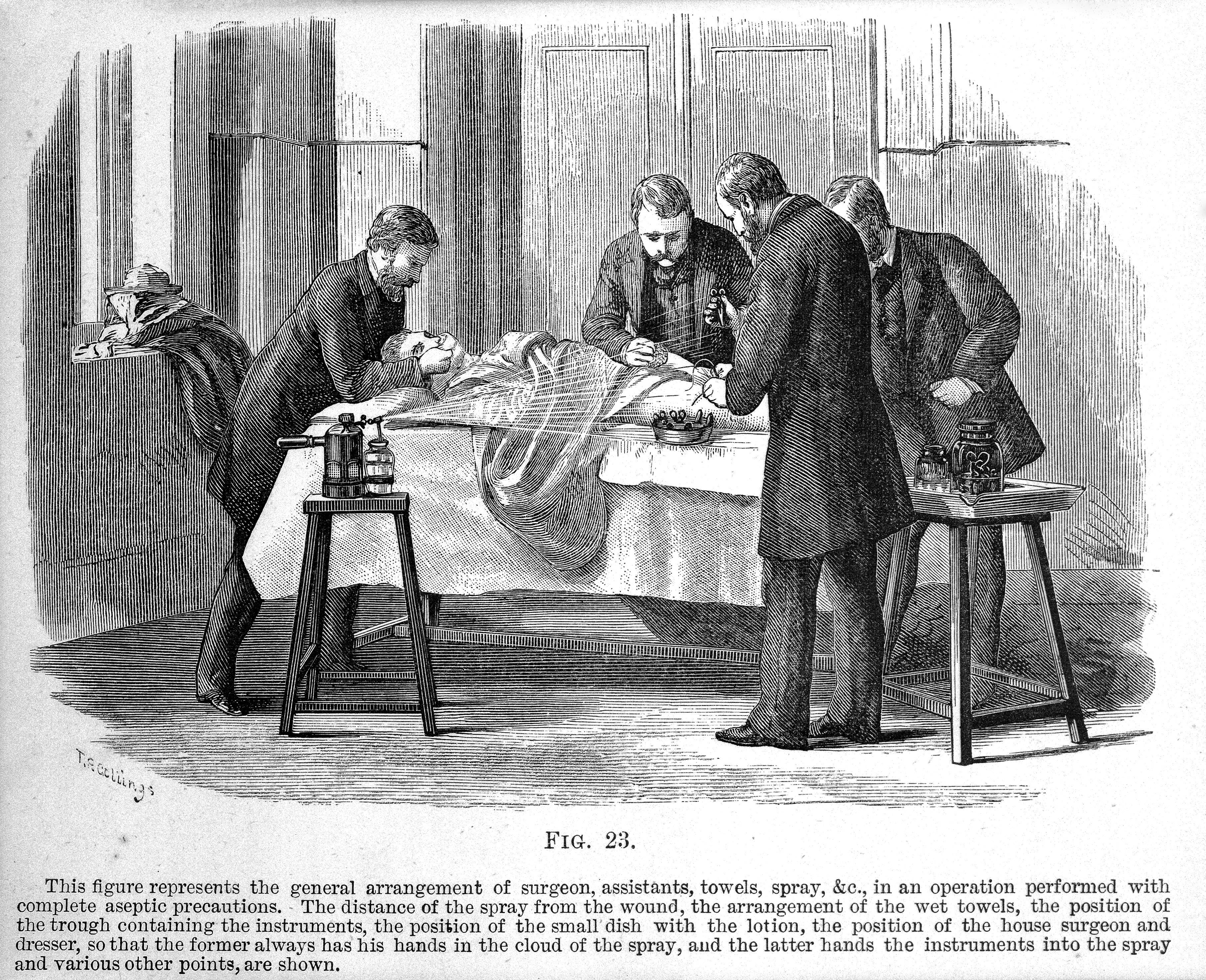 Lister 1882